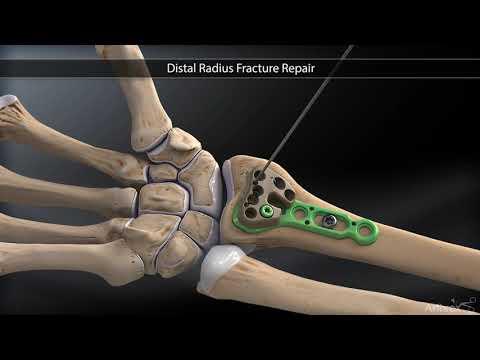 recuperarea genunchiului după fractură cu deplasare