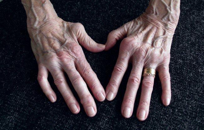 artrita mâinii unei femei