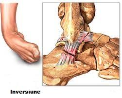 dureri de gleznă după accidentare tratament articular periartrita
