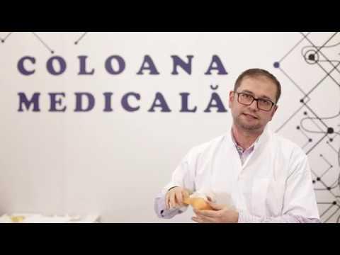 glucosamina condroitină 90 dureri de cot la ridicarea unei mâini