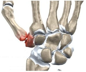 durere în articulația degetului mic
