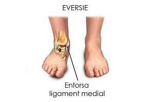 inflamația edemului gleznei artrita prognosticului articulației cotului