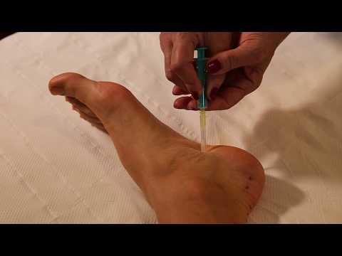 durerea de șold nervos ciupit tratamentul artrozei la Beijing