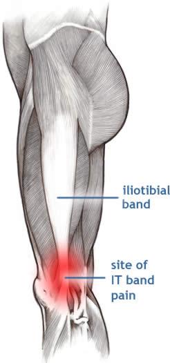 tutorial de accidentare la genunchi