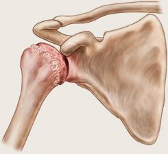 artroza articulațiilor cervicale ale umărului