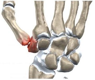 articulația degetului după rănire