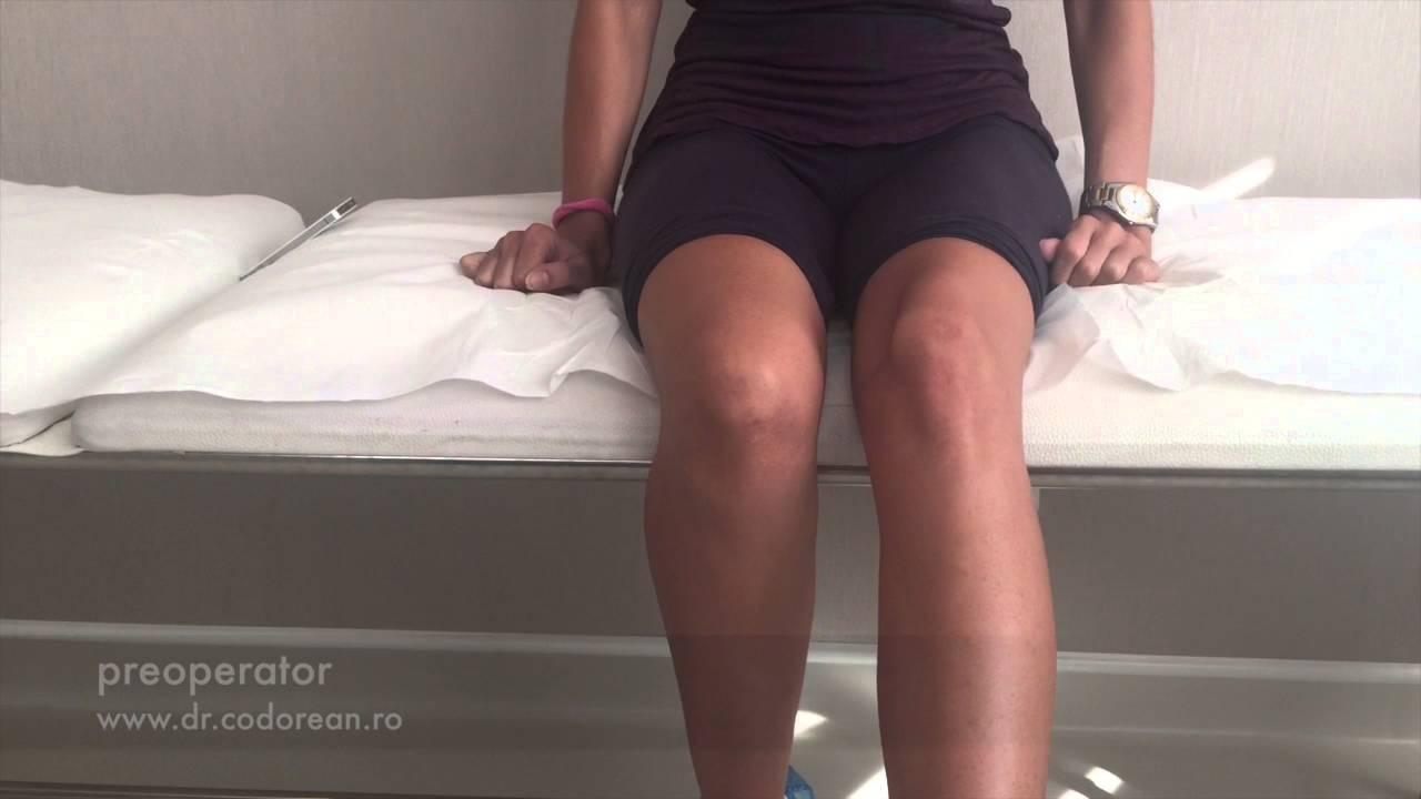 unguent pentru luxația genunchiului