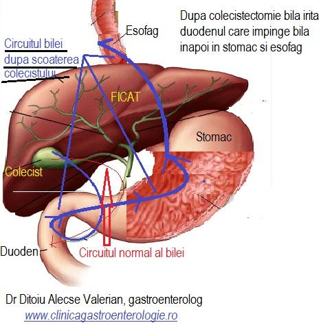 artroza și tratamentul vezicii biliare