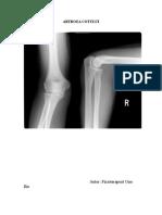 osteocondroza tratamentului medicamentos al coloanei lombare zvâcni în articulațiile genunchiului fără durere