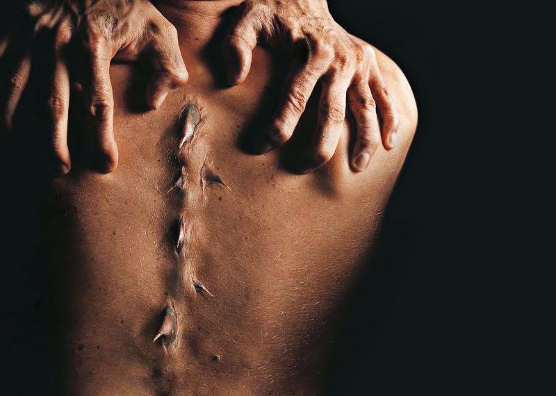 tratamentul durerilor articulare cu un flux de castor