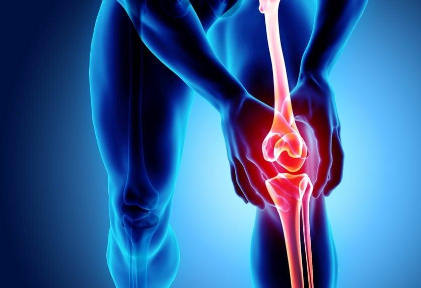 Prognostic în tratamentul artrozei, Gonartroza (artroza genunchiului)