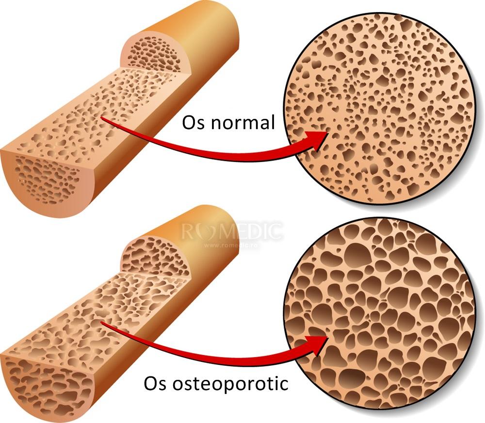 Tratamentul Osteoporozei