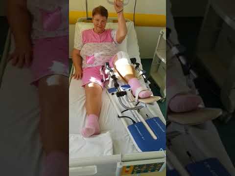 gonartroza la genunchi operatie artroza degetelor decât a trata