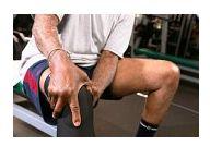 Artrita genunchiului de 2 grade - Sindromul bolii articulației genunchiului