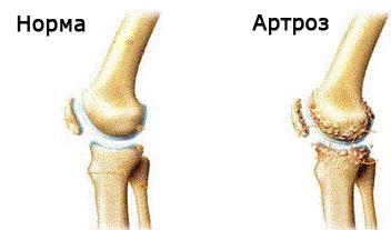 artroza deformării genunchiului