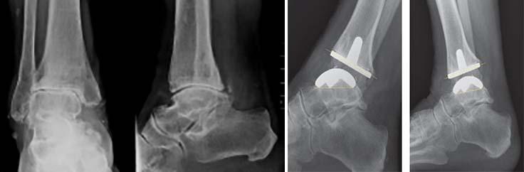 tratamentul artrozei gleznei de gradul I