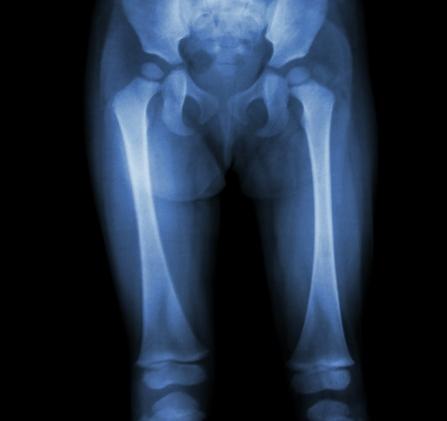 copilul are dureri în articulațiile picioarelor