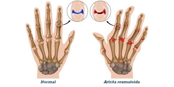 frunze de artar pentru artroza întărirea articulației genunchiului