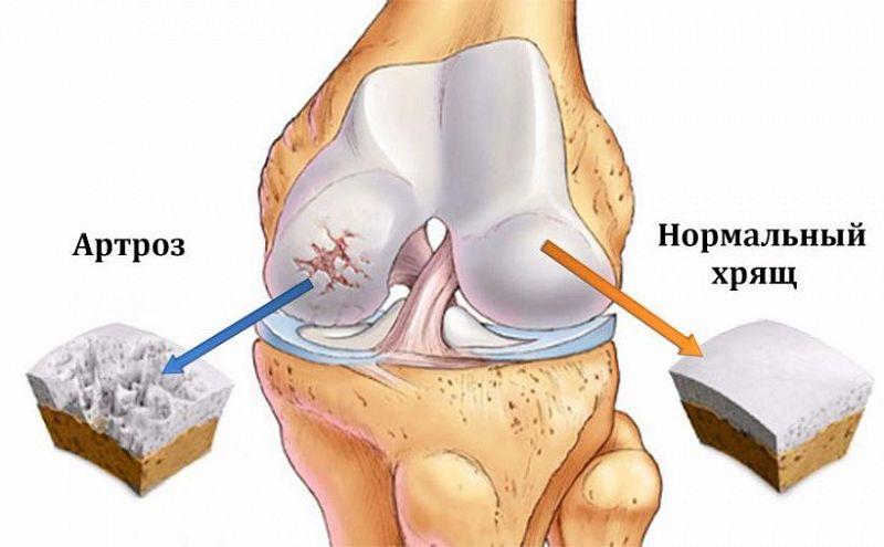 durere ascuțită în articulația cotului când este îndoită