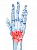 boală articulară la încheietura mâinii