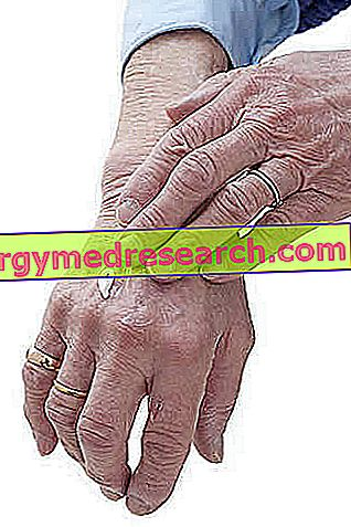 ce boli articulare sunt moștenite tapotând cu artroza genunchiului