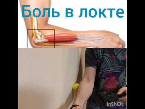 unguent pentru artra articulațiilor unde tratează ortroza articulară