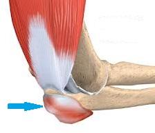 acumularea de lichide a tratamentului articulației cotului cum să anesteziați și să tratați artroza