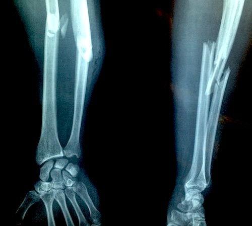 deteriorarea oaselor și fracturii articulațiilor