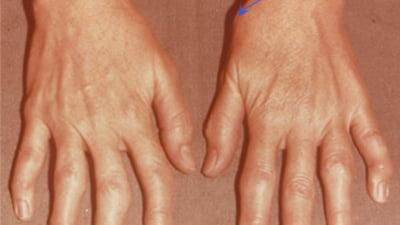 simptomele tratamentului artrozei mâinii Tratamentul articulației aflubinei