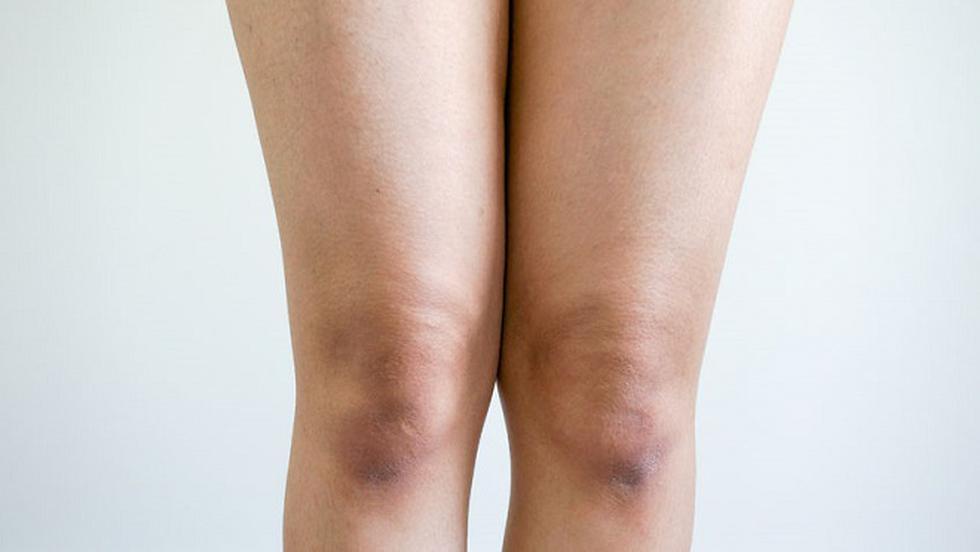ce face ca genunchii să crape