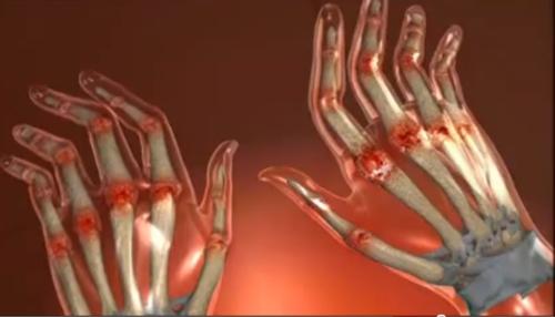 artrita reumatoida imagini de mana