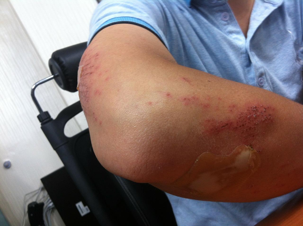 de ce articulațiile doare din carne o durere articulară la șold