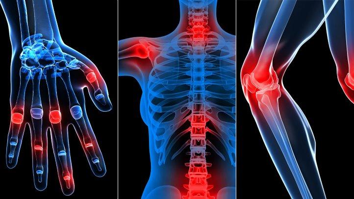tratament cu artroză în baie