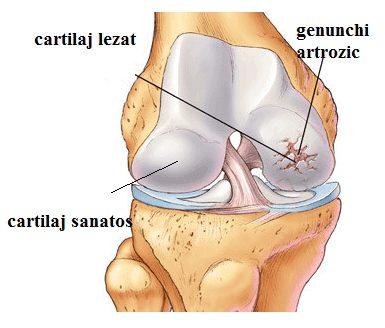 ce sunt artroza genunchiului durere cu articulația umărului drept
