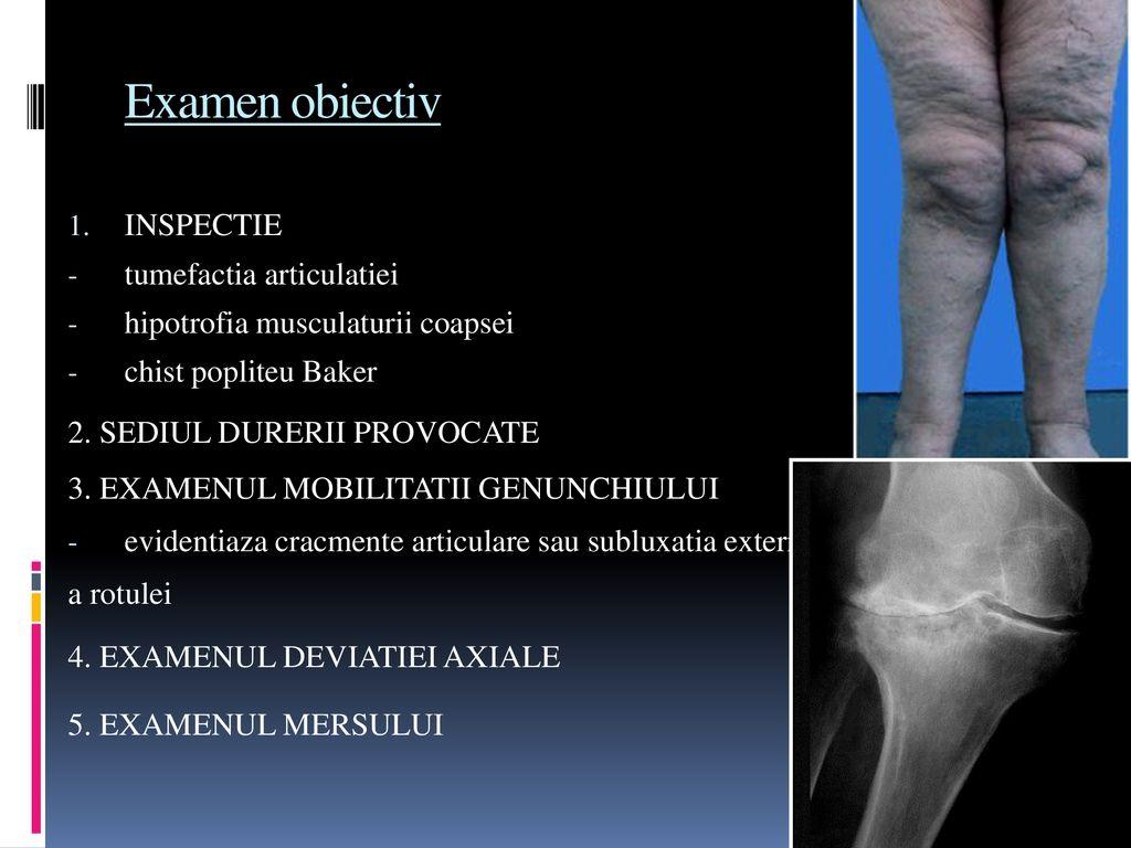 tratamentul artrozei Ziua de Mai