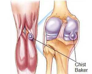 Dacă nu tratați artrita genunchiului