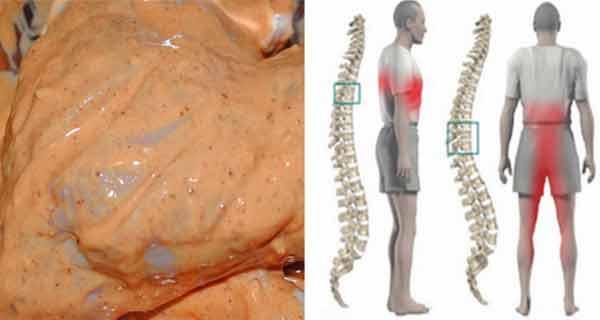 tratament dureri lombare articulațiile din corp rănite