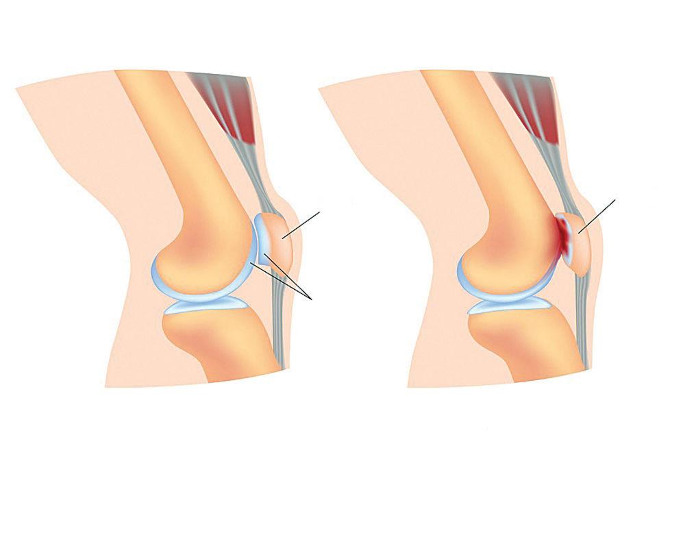 tratamentul durerii cotului stâng