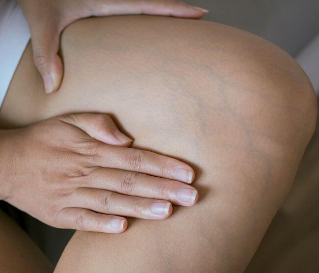 tratamentul venelor și articulațiilor medicamente pentru durerea articulațiilor genunchiului