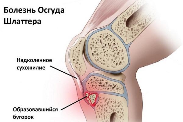 boli degenerative-distrofice ale oaselor și articulațiilor