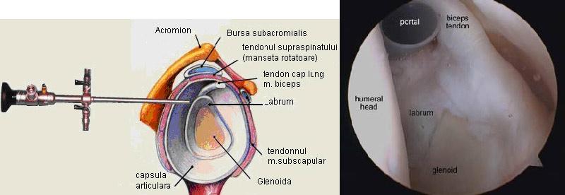 Artroscopia articulației umărului