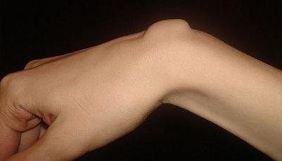 ce determină rănirea articulației încheieturii? tratamentul artrozei caripazim