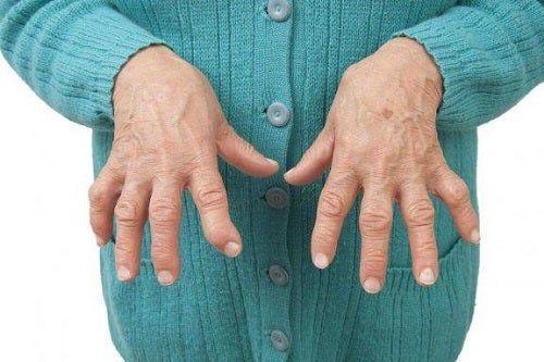 Anti artrita nano pentru articulații