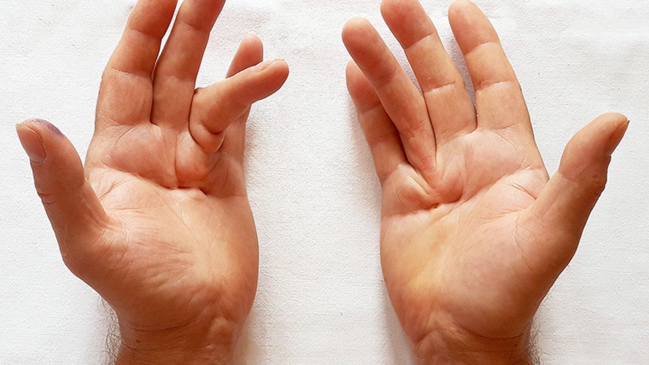 Ceea ce se numește boală articulară pe mâini - sfantipa.ro