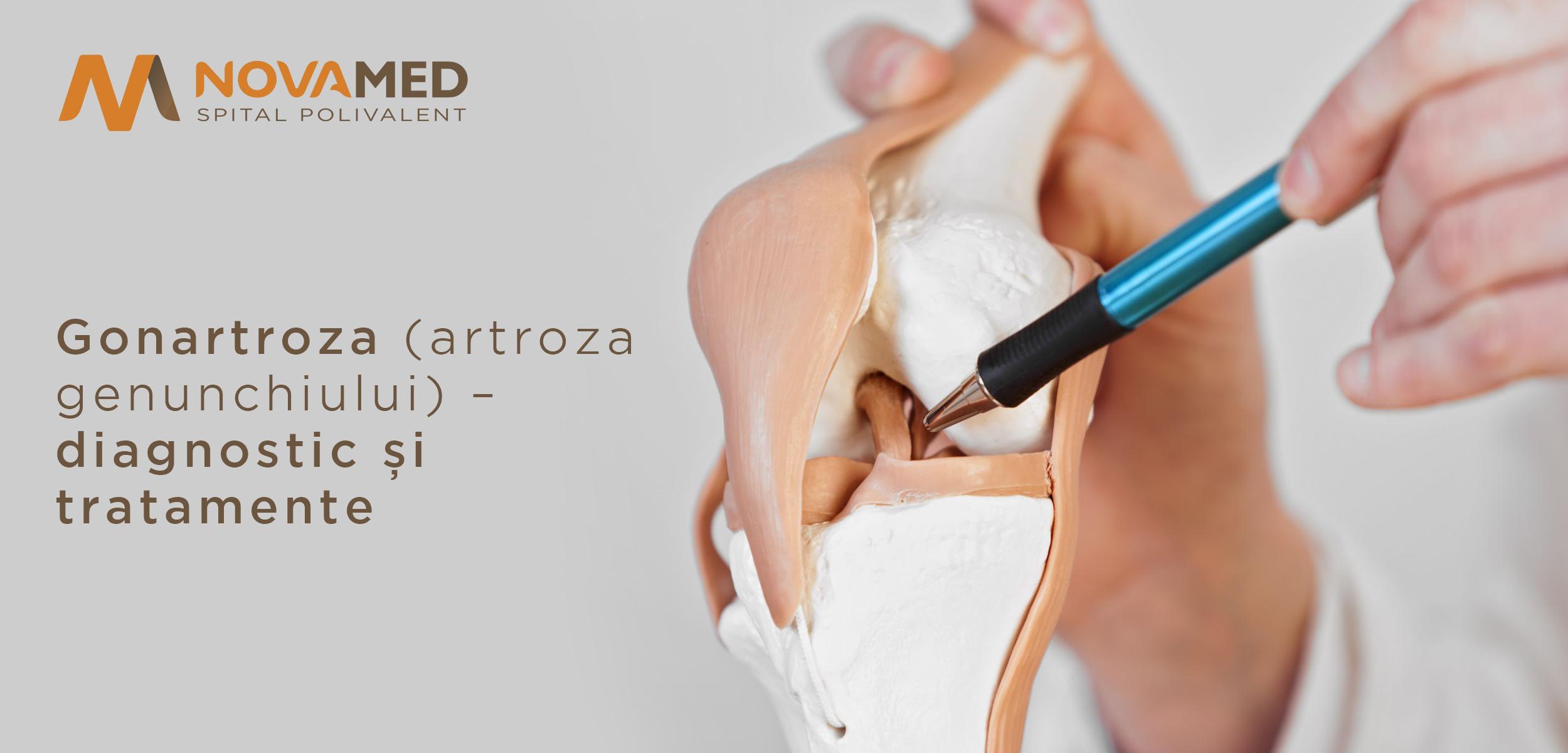 artroza pentru tratamentul genunchiului