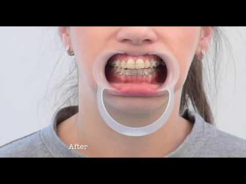 artrita articulației temporomandibulare artrita alergică care tratează