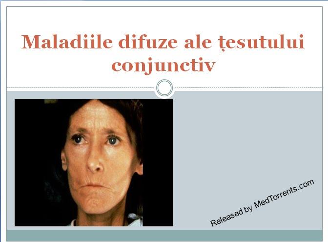 prelegere difuză a bolii țesutului conjunctiv cum se tratează artroza costală transversală