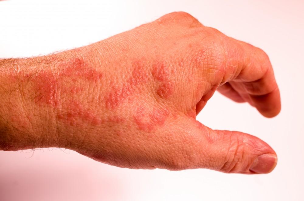Pete pe piele: Tipuri, cauze si remedii