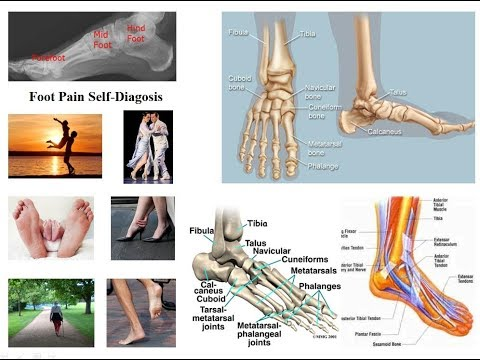 tragerea durerii în articulația piciorului