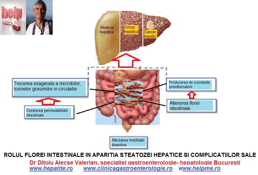 articulațiilor după o infecție intestinală Gelul voltaren ajută la osteochondroză